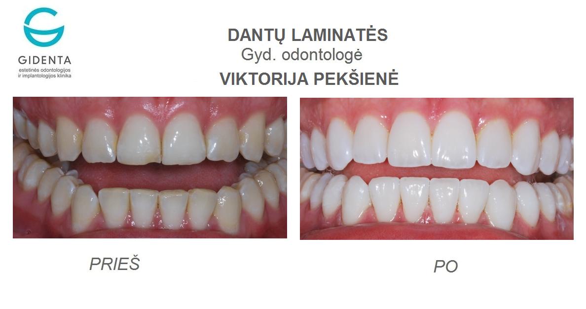 Viktorija-Pekšienė-protezavimas-laminatemis-10-vnt-.png